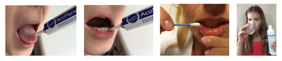 zánět dásní - jak léčit, příznaky, příčiny