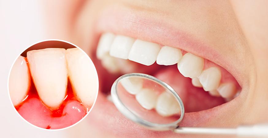 Trápí Vás záněty dásní a dutiny ústní?