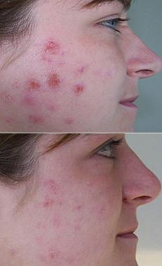 Akné na tváři.