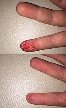 Stržená kůže na prstu