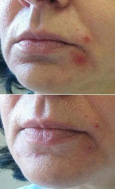 Nehojící se akné na tváři