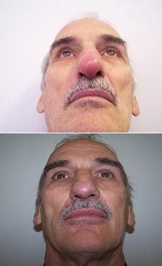 Zánět měkkých tkání na nose