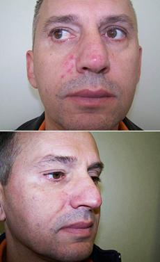 Furunkulóza (vředy, nežity) na tváři