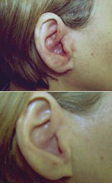 Akutní infekce ucha Beta-hemolytickým streptokokem A